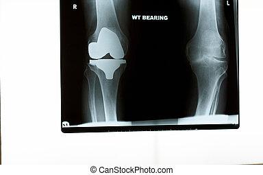 röntgenaufnahme, von, a, knie, ersatz