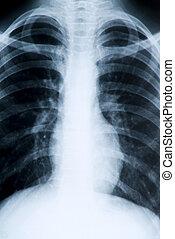 röntgenfoto, borst, intern, massa, uitgebreid, optredens
