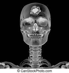 röntgenfoto, hoofdverwonding, 3d