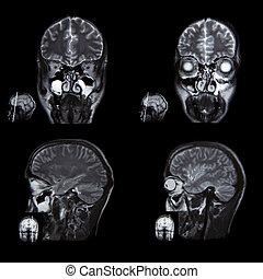röntgenstrahl- bild, von, der, gehirn, berechnet, t