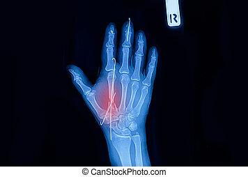 röntgenstrahl- bild, von, hand, von, a, menschlicher körperteil, weisen, knochen, knochenbrüche, mit, implantate