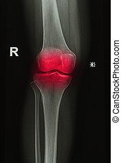 röntgenstralen, beeld, joint, knie, letsel, of, pijnlijk