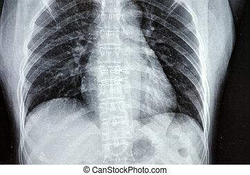 röntgenstralen