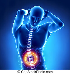 rückgrat, problem, menschliche , röntgenaufnahme, lumbal