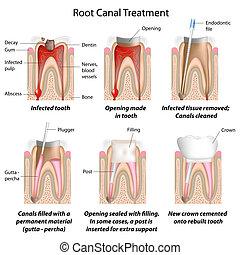 raíz, canal, tratamiento, eps8