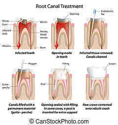 radice, canale, trattamento, eps8
