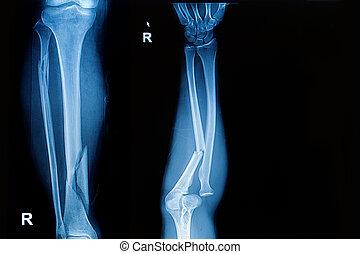 radiografía, antebrazo, imagen, fractura, eje, ambos, hueso...
