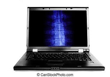 radiografía, computador portatil, imagen