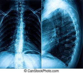 radiografía, de, espinazo