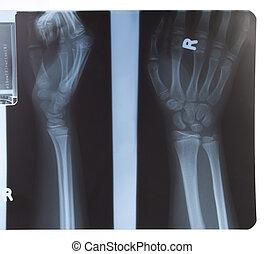 radiografía de la mano, antebrazo