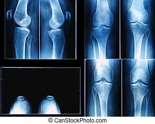 radiografía de la rodilla