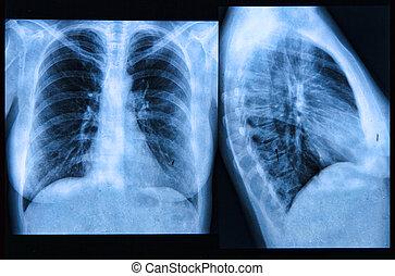 radiografía del pecho, imagen