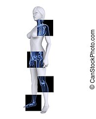 radiografía, hembra, esqueleto
