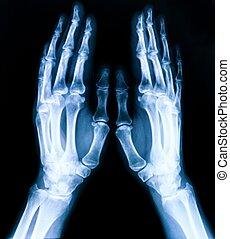 radiografía, huesos, placa, manos, ambos, humano