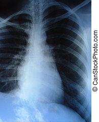 radiografía, pulmones