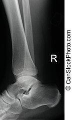 radiografía, tobillo, derecho