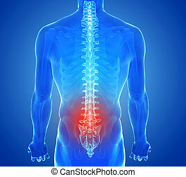 radiografía, vista, de, espina dorsal, dolor, -, vértebras, trauma