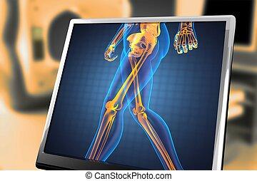 radiografia, human, varredura