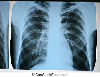 radiografia, raios x, modernos, pneumonia, teste, exploração