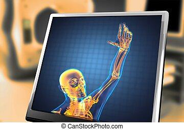 radiografie, menselijk, scanderen
