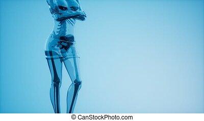 radiographie, squelette humain, balayage, monde médical