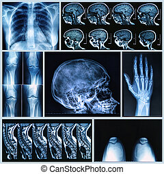 Radiography of Human Bones: x-ray and MRI scans