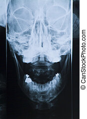 Radiography of the head and teeth