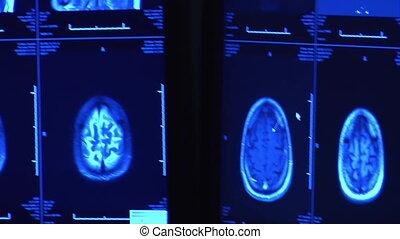 Radiologist watching monitors of brain scan