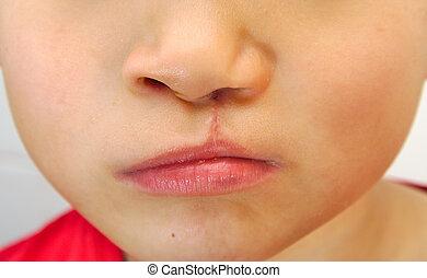 ragazzo, unilaterale, esposizione, labbro, spaccato, repaired.