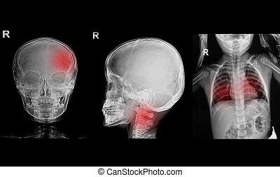 raggi X, cranio, mostra, immagine, collezione, torace, bambini