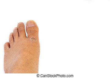Rash dermatitis or eczema skin on the legs over white background