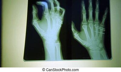 rayon x, doigt, monde médical, balayage, humain, technologie, balayage