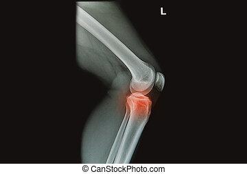 rayon x, image, de, les, douloureux, ou, blessure, jointure genou, genou, trauma