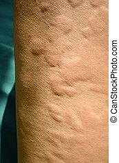 reaction., allergique, peau, urticaria, éruption