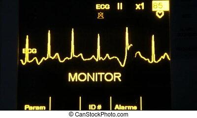 real EKG monitor, shooting Canon 5D Mark II