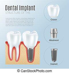 Realistic Dental Implant Infographics