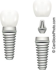 Realistic Dental Implant Structure With All Parts Crown, Abutment, Screw Isolated On A White Background. Vector Illustration.