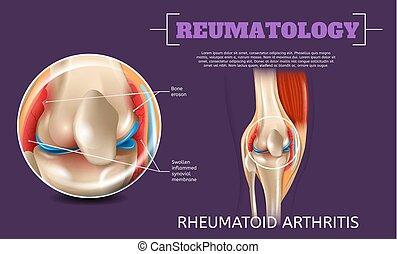 Realistic Illustration Knee Rheumatoid Arthritis