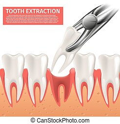 Realistic Illustration Tooth Extraction Vector 3d