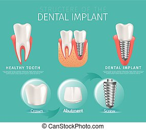 Realistic Image Structure of the Dental Implant