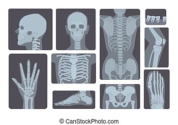 Realistic x-ray shots collection. Human body hand, leg, ...