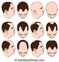 Receding Hairlines - An image of man with various receding...