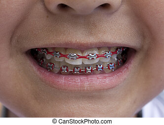Red Braces - Close-up of a young boy with red braces