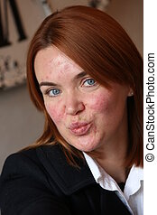 Red haired girl with acne