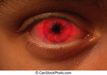 Red Vortex in an eyeball - Close-up of eyeball with a red...