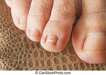 Regrown Foot Nail