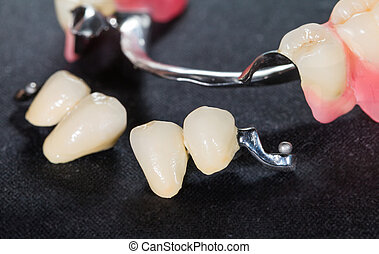 Removable dental prosthesis - Closeup of dental skeletal ...
