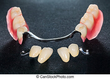 Removable dental prosthesis - Closeup of dental skeletal...
