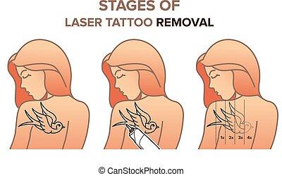 removal., étapes, vecteur, illustration, laser, tatouage