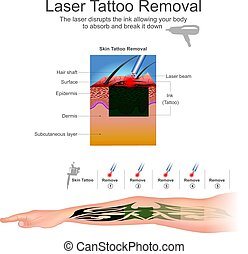 remove2, laser, t�towierung